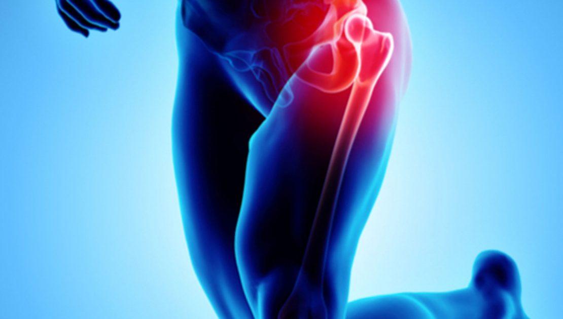 La protesi d'anca. Perché intervenire con tecnica ASI