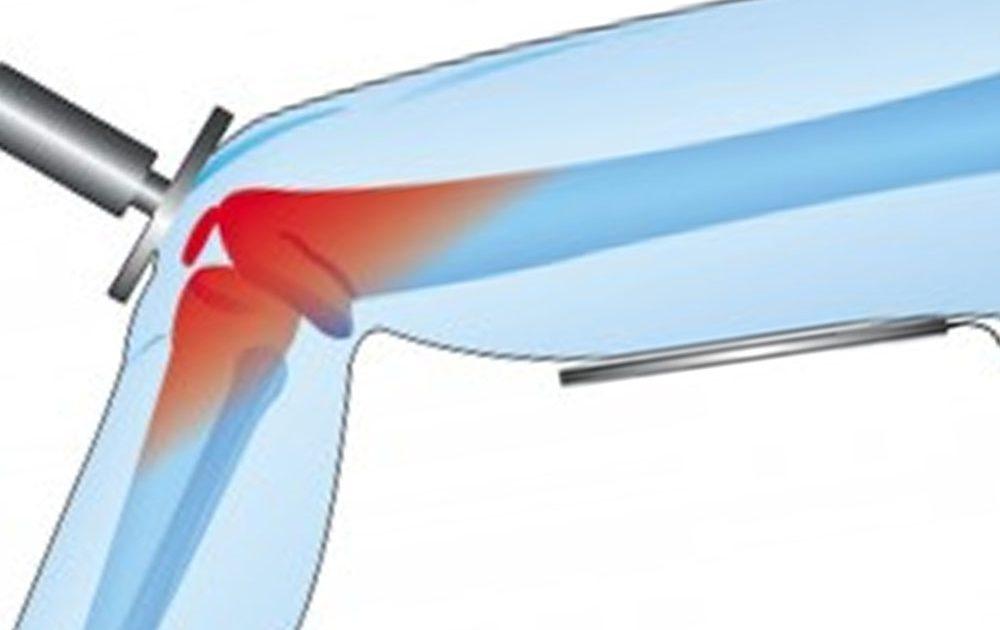 Tecar: stimola la produzione di calore interna al corpo per l'autoguarigione