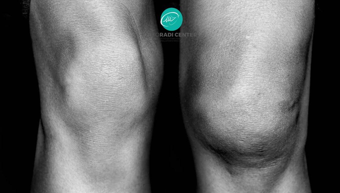 Sindrome femoro-rotulea: sintomi e trattamento