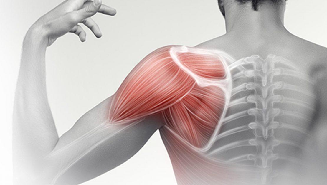 L'instabilità di spalla negli adolescenti: cause e rimedi