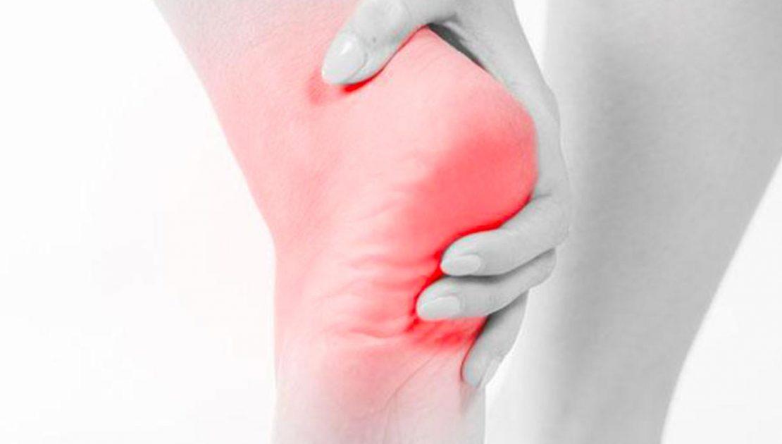 La spina calcaneare o sperone calcaneare